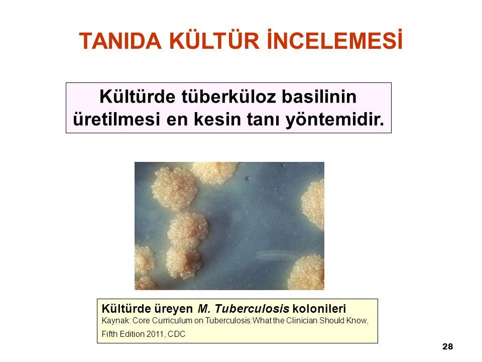 28 TANIDA KÜLTÜR İNCELEMESİ Kültürde tüberküloz basilinin üretilmesi en kesin tanı yöntemidir. Kültürde üreyen M. Tuberculosis kolonileri Kaynak: Core