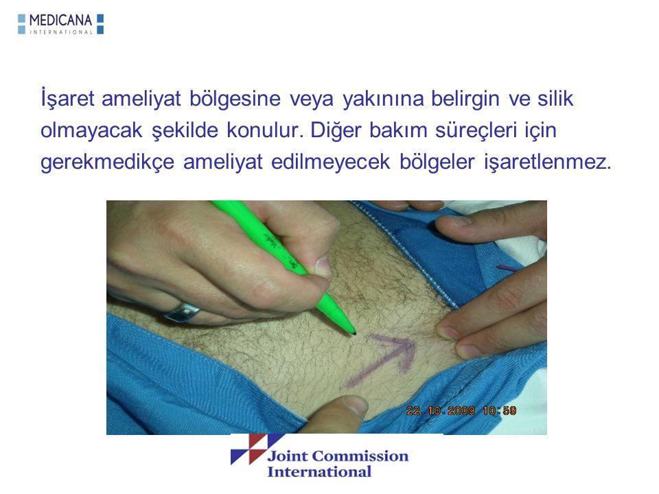 İşaret ameliyat bölgesine veya yakınına belirgin ve silik olmayacak şekilde konulur. Diğer bakım süreçleri için gerekmedikçe ameliyat edilmeyecek bölg