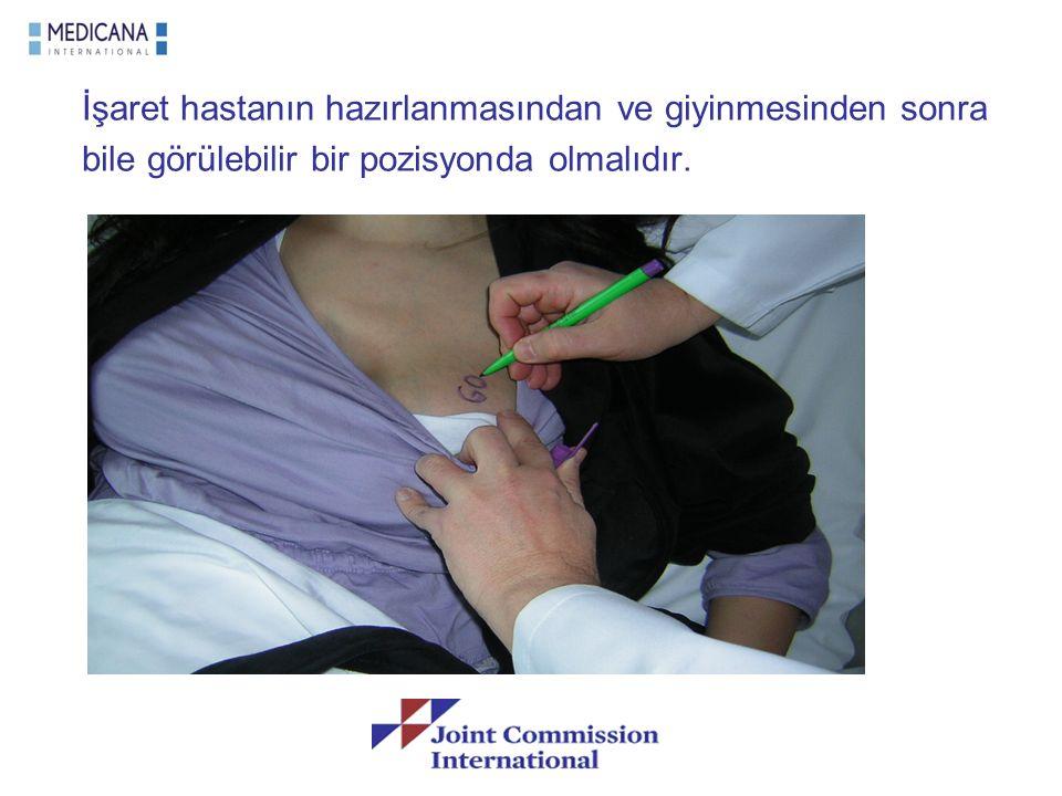 İşaret hastanın hazırlanmasından ve giyinmesinden sonra bile görülebilir bir pozisyonda olmalıdır.