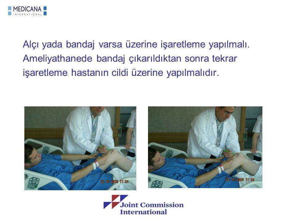 Alçı yada bandaj varsa üzerine işaretleme yapılmalı. Ameliyathanede bandaj çıkarıldıktan sonra tekrar işaretleme hastanın cildi üzerine yapılmalıdır.