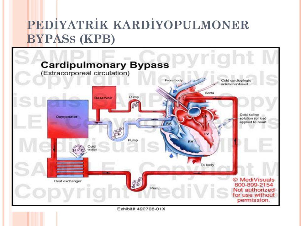 PEDİYATRİK KARDİYOPULMONER BYPAS S (KPB)