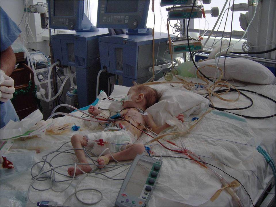 İntraoperatif-2 ECG monitörizasyonu Vücut ısısı monitörizasyonu (özefageal-rektal-mesane) özellikle açık kalp cerrahisi yapılan hastalarda gerekirse ısıtıcı battaniyeler SpO2 (Pulse okumuyor-hasta soğuk+ periferik VK?, kardiyak output düşük?) Arteriel line : TA monitörizasyonu+ arteriyel kan gazı takibi Tüm açık kalp ameliyatlarında, birçok kapalı kardiyak girişimde 20-22G intraket, radial-posterior tibial-dorsalis pedis- umblikal (YD'da) brakial –iskemi riski?.