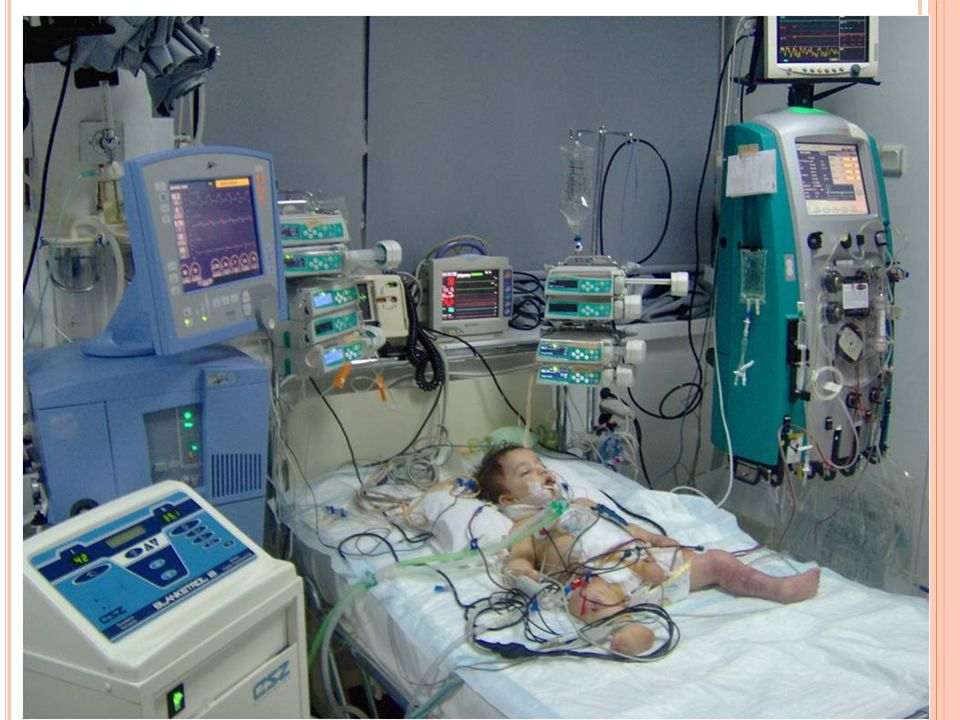 P OST - OPERATIF DÖNEM - HİPERGLİSEMİ Sıkı glisemik kontrol inflamasyon markerları azalmış ybü yatış süresi daha kısa mortalite daha az
