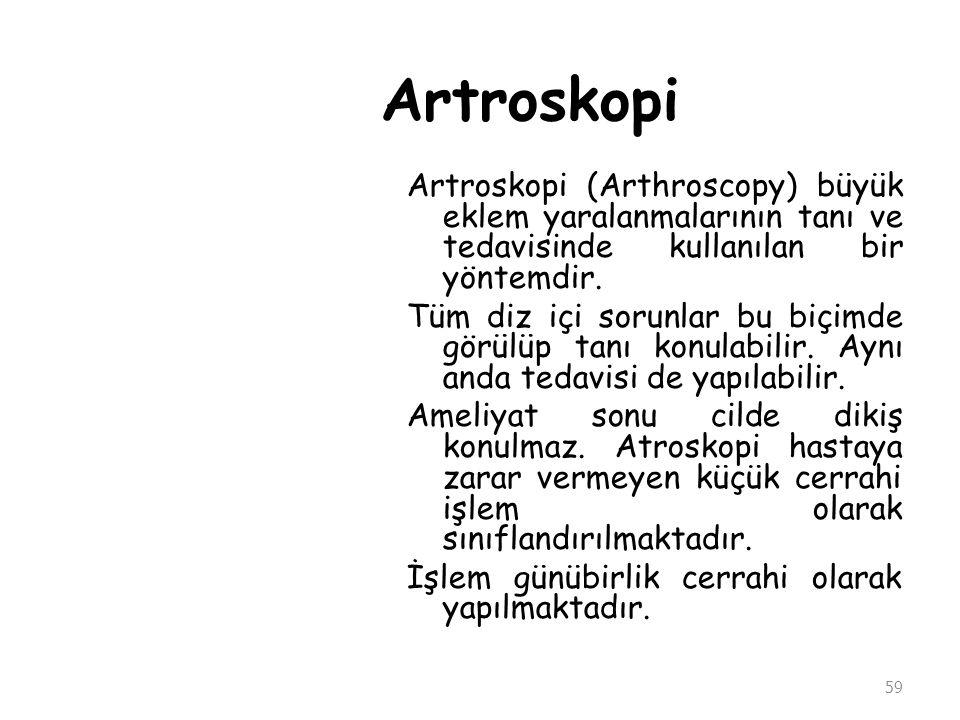 Artroskopi Artroskopi (Arthroscopy) büyük eklem yaralanmalarının tanı ve tedavisinde kullanılan bir yöntemdir. Tüm diz içi sorunlar bu biçimde görülüp