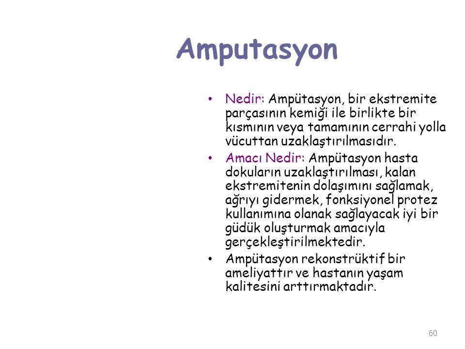 Amputasyon Nedir: Ampütasyon, bir ekstremite parçasının kemiği ile birlikte bir kısmının veya tamamının cerrahi yolla vücuttan uzaklaştırılmasıdır.