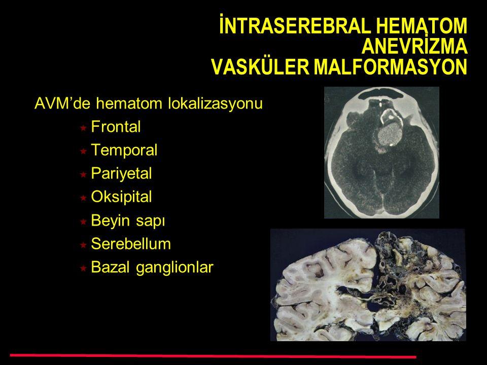 İNTRASEREBRAL HEMATOM ANEVRİZMA VASKÜLER MALFORMASYON AVM'de hematom lokalizasyonu  Frontal  Temporal  Pariyetal  Oksipital  Beyin sapı  Serebellum  Bazal ganglionlar