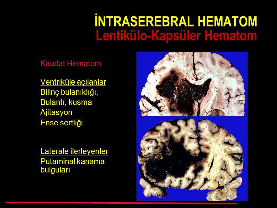 Kaudat Hematom Ventriküle açılanlar Bilinç bulanıklığı, Bulantı, kusma Ajitasyon Ense sertliği Laterale ilerleyenler Putaminal kanama bulguları İNTRASEREBRAL HEMATOM Lentikülo-Kapsüler Hematom