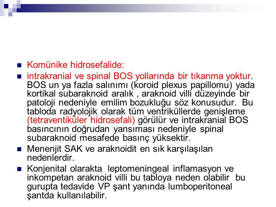 Komünike hidrosefalide: intrakranial ve spinal BOS yollarında bir tıkanma yoktur.