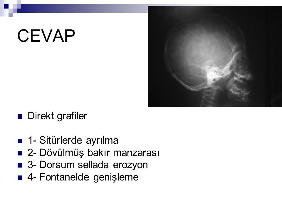CEVAP Direkt grafiler 1- Sitürlerde ayrılma 2- Dövülmüş bakır manzarası 3- Dorsum sellada erozyon 4- Fontanelde genişleme