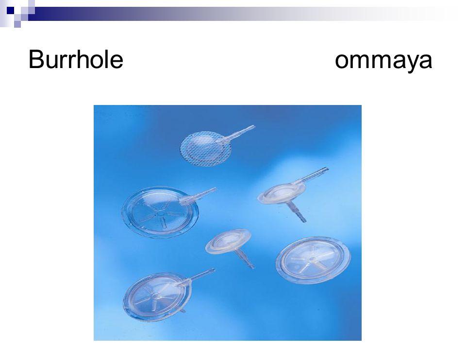 Burrhole ommaya