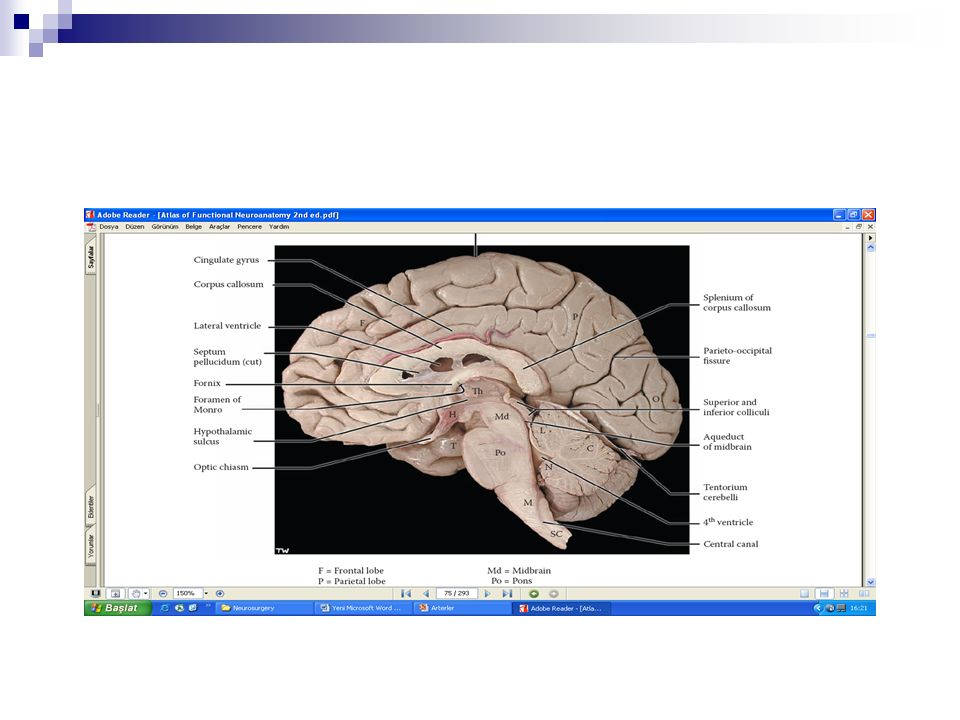 Slit ventrikül sendromu tedavisi; Hayatı tehdit eden bir tablolara neden olabilen bir süreçtir.