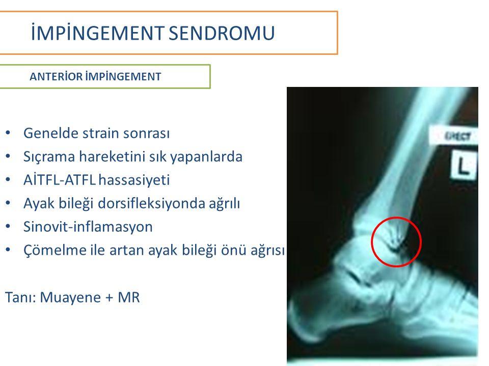 İMPİNGEMENT SENDROMU Genelde strain sonrası Sıçrama hareketini sık yapanlarda AİTFL-ATFL hassasiyeti Ayak bileği dorsifleksiyonda ağrılı Sinovit-inflamasyon Çömelme ile artan ayak bileği önü ağrısı Tanı: Muayene + MR ANTERİOR İMPİNGEMENT