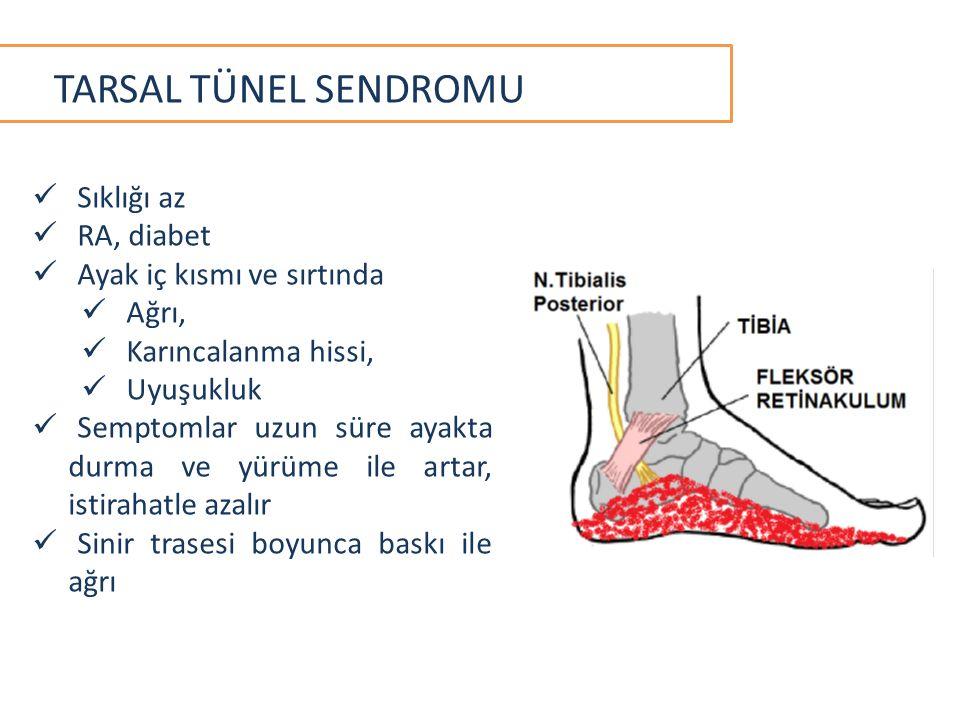 TARSAL TÜNEL SENDROMU Sıklığı az RA, diabet Ayak iç kısmı ve sırtında Ağrı, Karıncalanma hissi, Uyuşukluk Semptomlar uzun süre ayakta durma ve yürüme