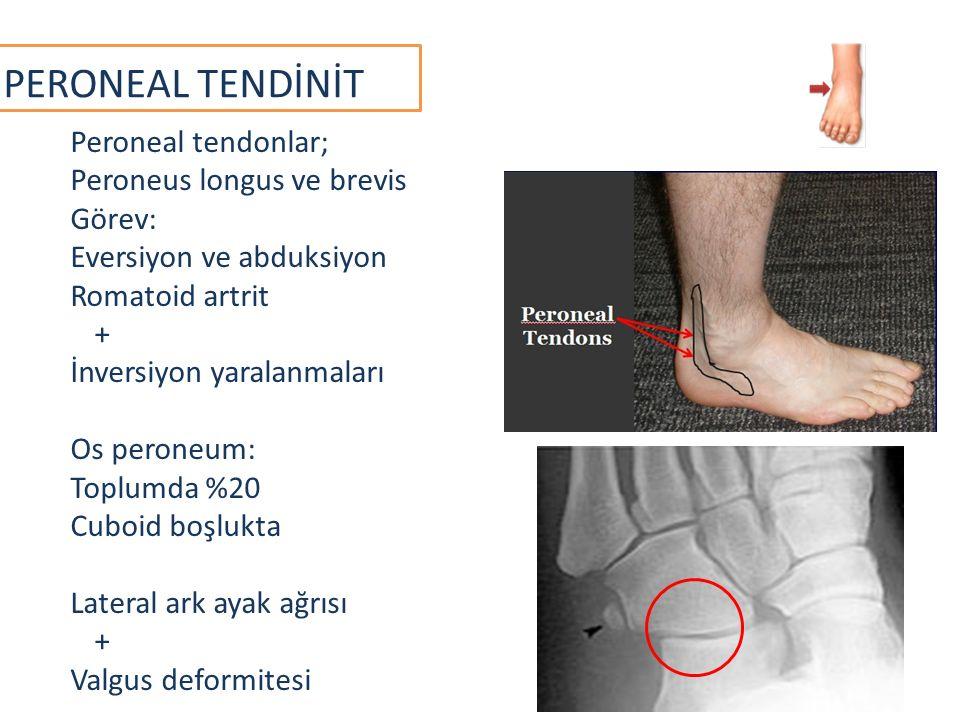 PERONEAL TENDİNİT Peroneal tendonlar; Peroneus longus ve brevis Görev: Eversiyon ve abduksiyon Romatoid artrit + İnversiyon yaralanmaları Os peroneum: Toplumda %20 Cuboid boşlukta Lateral ark ayak ağrısı + Valgus deformitesi