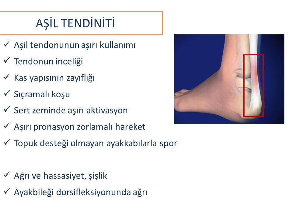 AŞİL TENDİNİTİ Aşil tendonunun aşırı kullanımı Tendonun inceliği Kas yapısının zayıflığı Sıçramalı koşu Sert zeminde aşırı aktivasyon Aşırı pronasyon zorlamalı hareket Topuk desteği olmayan ayakkabılarla spor Ağrı ve hassasiyet, şişlik Ayakbileği dorsifleksiyonunda ağrı