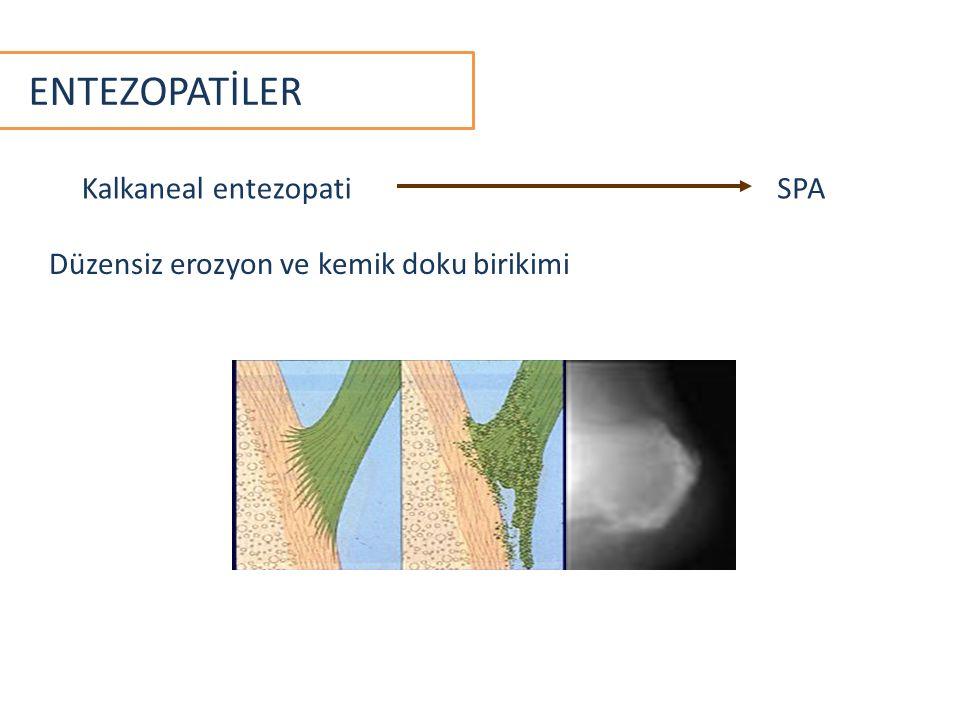 ENTEZOPATİLER Düzensiz erozyon ve kemik doku birikimi Kalkaneal entezopatiSPA