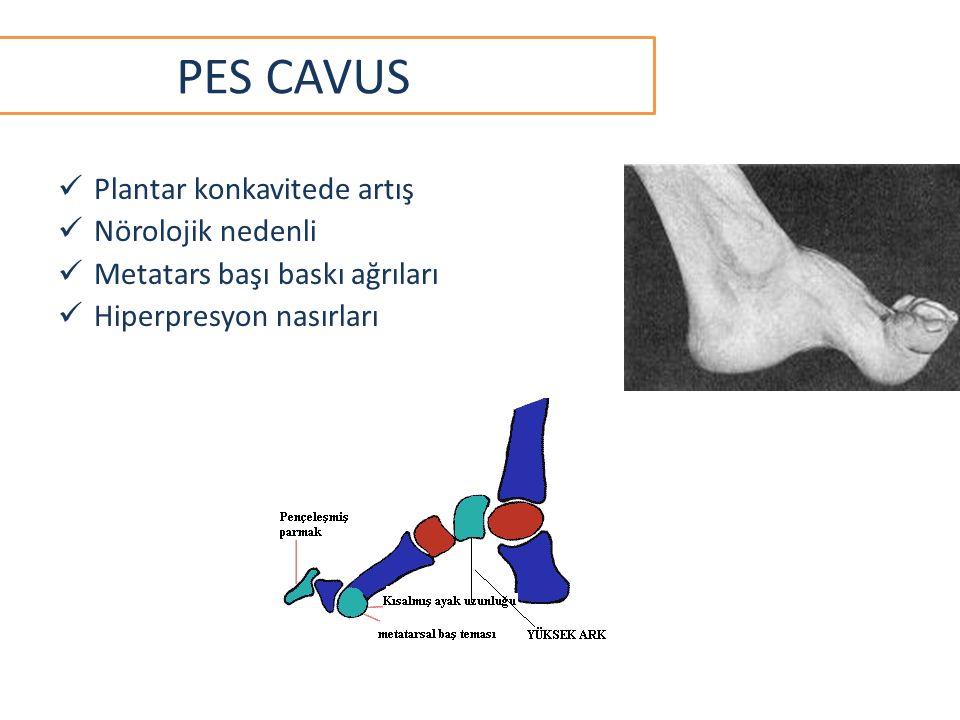 Plantar konkavitede artış Nörolojik nedenli Metatars başı baskı ağrıları Hiperpresyon nasırları PES CAVUS