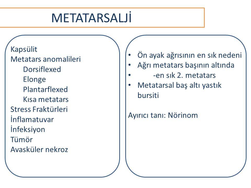 METATARSALJİ Kapsülit Metatars anomalileri Dorsiflexed Elonge Plantarflexed Kısa metatars Stress Fraktürleri İnflamatuvar İnfeksiyon Tümör Avasküler nekroz Ön ayak ağrısının en sık nedeni Ağrı metatars başının altında -en sık 2.