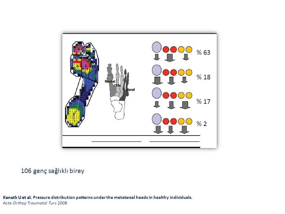 % 63 % 18 % 17 % 2 Kanatlı U et al. Kanatlı U et al. Pressure distribution patterns under the metatarsal heads in healthy individuals. Acta Orthop Tra