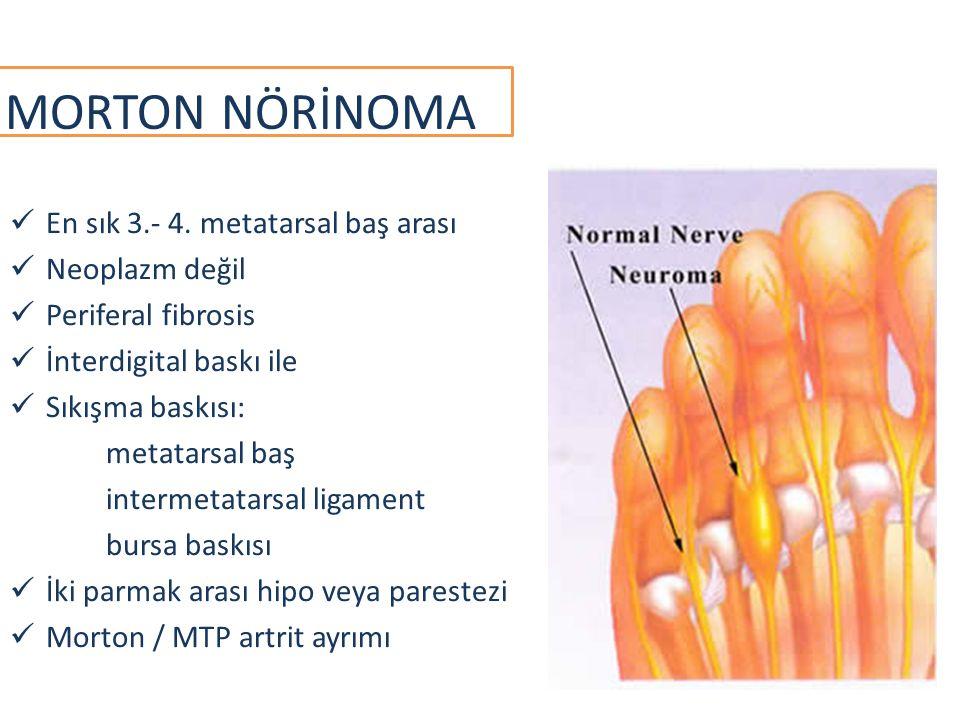 MORTON NÖRİNOMA En sık 3.- 4. metatarsal baş arası Neoplazm değil Periferal fibrosis İnterdigital baskı ile Sıkışma baskısı: metatarsal baş intermetat