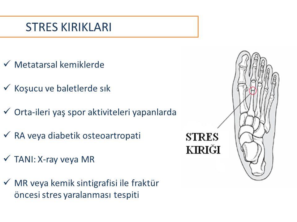 STRES KIRIKLARI Metatarsal kemiklerde Koşucu ve baletlerde sık Orta-ileri yaş spor aktiviteleri yapanlarda RA veya diabetik osteoartropati TANI: X-ray veya MR MR veya kemik sintigrafisi ile fraktür öncesi stres yaralanması tespiti