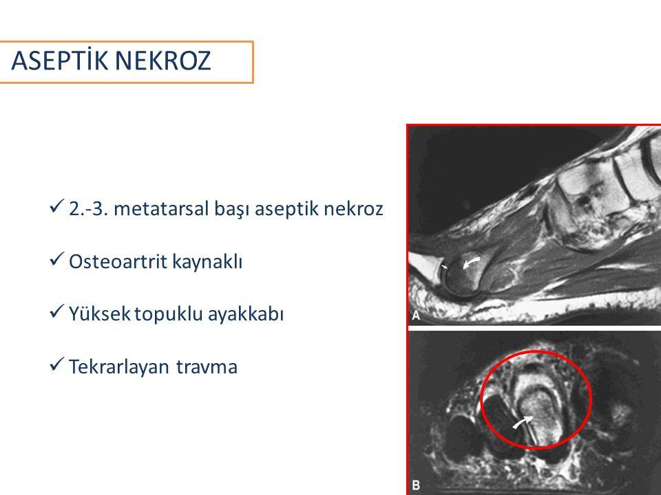 ASEPTİK NEKROZ 2.-3. metatarsal başı aseptik nekroz Osteoartrit kaynaklı Yüksek topuklu ayakkabı Tekrarlayan travma