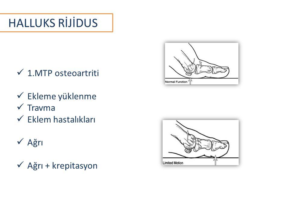 HALLUKS RİJİDUS 1.MTP osteoartriti Ekleme yüklenme Travma Eklem hastalıkları Ağrı Ağrı + krepitasyon