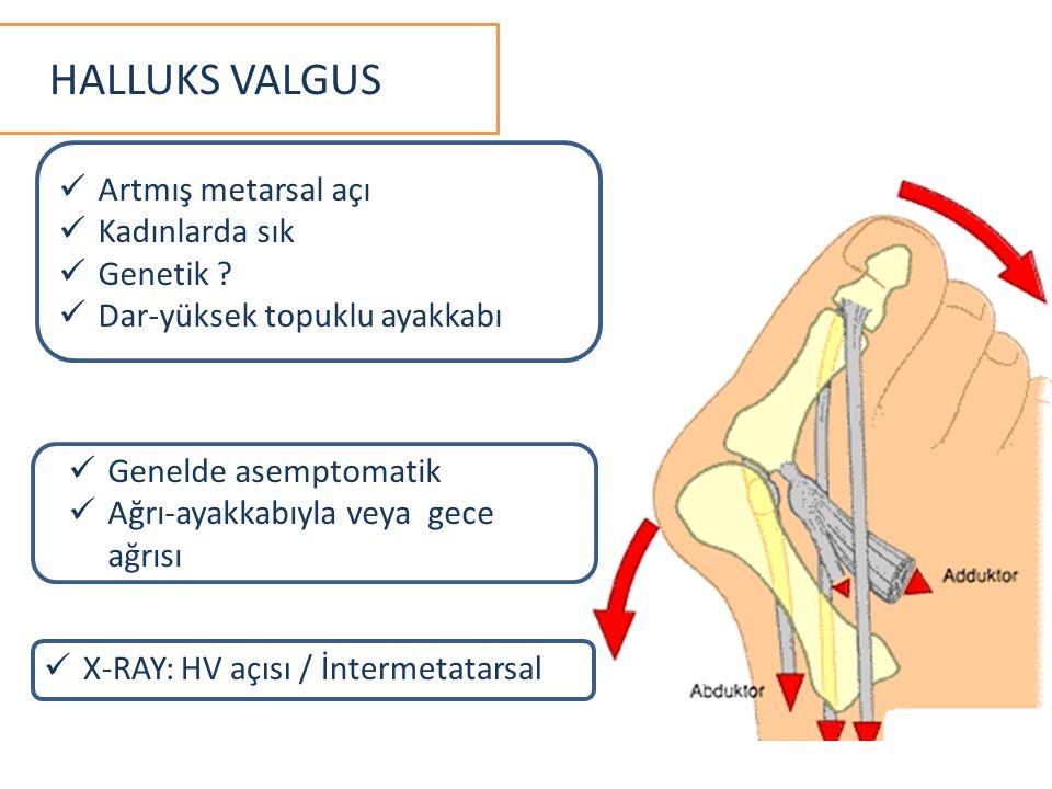 Artmış metarsal açı Kadınlarda sık Genetik ? Dar-yüksek topuklu ayakkabı Genelde asemptomatik Ağrı-ayakkabıyla veya gece ağrısı X-RAY: HV açısı / İnte