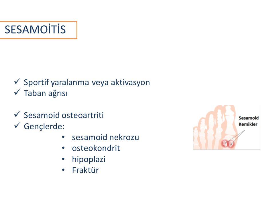 SESAMOİTİS Sportif yaralanma veya aktivasyon Taban ağrısı Sesamoid osteoartriti Gençlerde: sesamoid nekrozu osteokondrit hipoplazi Fraktür