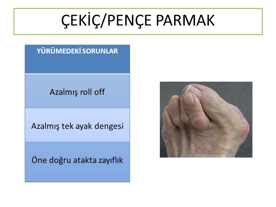 ÇEKİÇ/PENÇE PARMAK