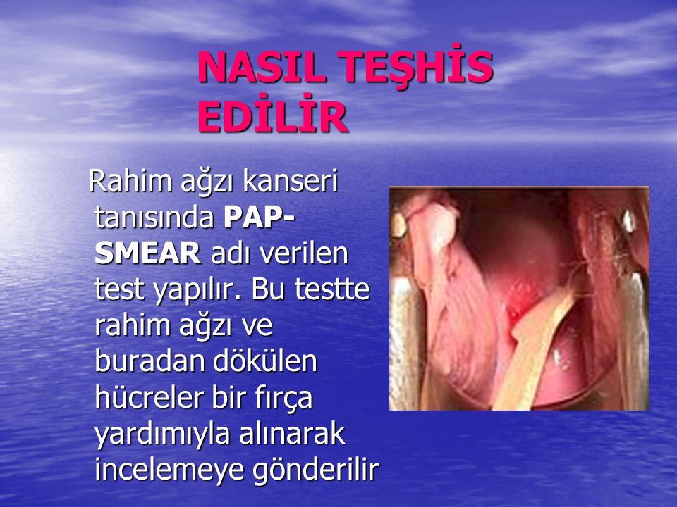 NASIL TEŞHİS EDİLİR Rahim ağzı kanseri tanısında PAP- SMEAR adı verilen test yapılır.