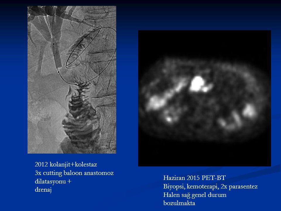 2012 kolanjit+kolestaz 3x cutting baloon anastomoz dilatasyonu + drenaj Haziran 2015 PET-BT Biyopsi, kemoterapi, 2x parasentez Halen sağ genel durum bozulmakta