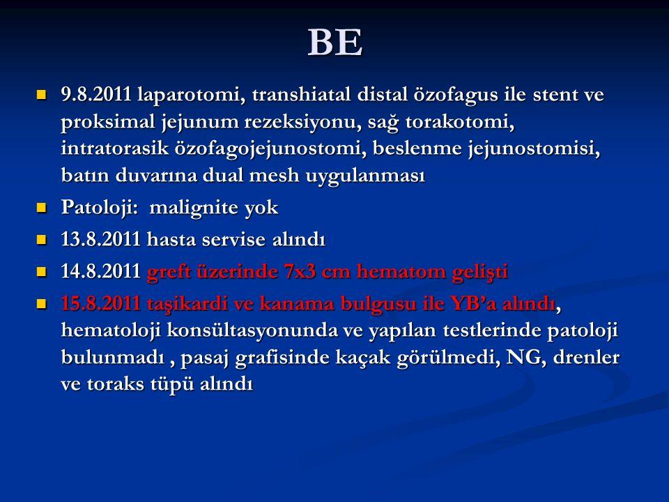 BE 9.8.2011 laparotomi, transhiatal distal özofagus ile stent ve proksimal jejunum rezeksiyonu, sağ torakotomi, intratorasik özofagojejunostomi, beslenme jejunostomisi, batın duvarına dual mesh uygulanması 9.8.2011 laparotomi, transhiatal distal özofagus ile stent ve proksimal jejunum rezeksiyonu, sağ torakotomi, intratorasik özofagojejunostomi, beslenme jejunostomisi, batın duvarına dual mesh uygulanması Patoloji: malignite yok Patoloji: malignite yok 13.8.2011 hasta servise alındı 13.8.2011 hasta servise alındı 14.8.2011 greft üzerinde 7x3 cm hematom gelişti 14.8.2011 greft üzerinde 7x3 cm hematom gelişti 15.8.2011 taşikardi ve kanama bulgusu ile YB'a alındı, hematoloji konsültasyonunda ve yapılan testlerinde patoloji bulunmadı, pasaj grafisinde kaçak görülmedi, NG, drenler ve toraks tüpü alındı 15.8.2011 taşikardi ve kanama bulgusu ile YB'a alındı, hematoloji konsültasyonunda ve yapılan testlerinde patoloji bulunmadı, pasaj grafisinde kaçak görülmedi, NG, drenler ve toraks tüpü alındı