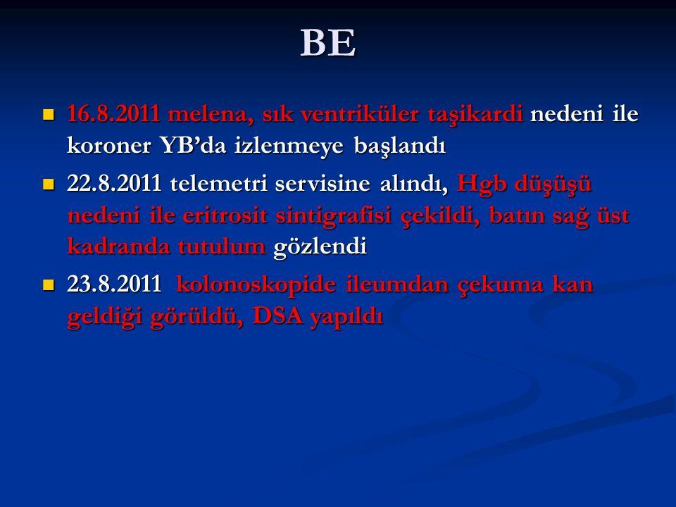 BE 16.8.2011 melena, sık ventriküler taşikardi nedeni ile koroner YB'da izlenmeye başlandı 16.8.2011 melena, sık ventriküler taşikardi nedeni ile koroner YB'da izlenmeye başlandı 22.8.2011 telemetri servisine alındı, Hgb düşüşü nedeni ile eritrosit sintigrafisi çekildi, batın sağ üst kadranda tutulum gözlendi 22.8.2011 telemetri servisine alındı, Hgb düşüşü nedeni ile eritrosit sintigrafisi çekildi, batın sağ üst kadranda tutulum gözlendi 23.8.2011 kolonoskopide ileumdan çekuma kan geldiği görüldü, DSA yapıldı 23.8.2011 kolonoskopide ileumdan çekuma kan geldiği görüldü, DSA yapıldı