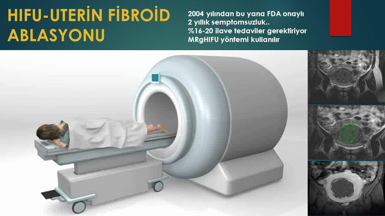HIFU-UTERİN FİBROİD ABLASYONU 2004 yılından bu yana FDA onaylı 2 yıllık semptomsuzluk..