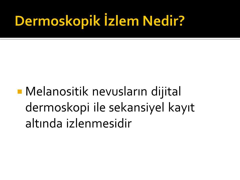  Melanositik nevusların dijital dermoskopi ile sekansiyel kayıt altında izlenmesidir