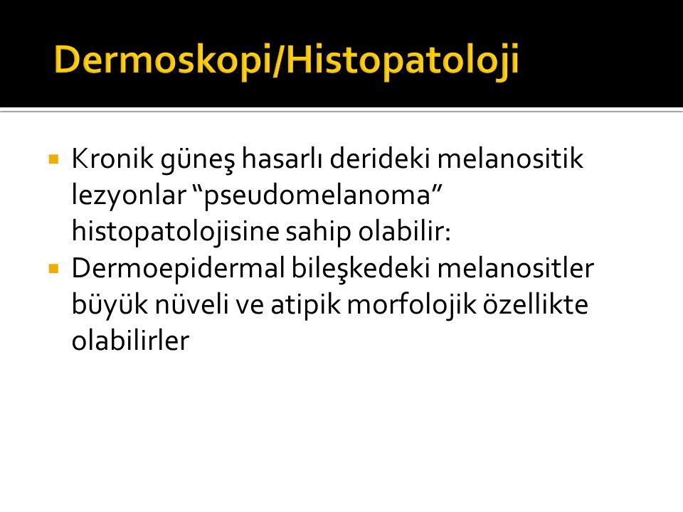 """ Kronik güneş hasarlı derideki melanositik lezyonlar """"pseudomelanoma"""" histopatolojisine sahip olabilir:  Dermoepidermal bileşkedeki melanositler büy"""