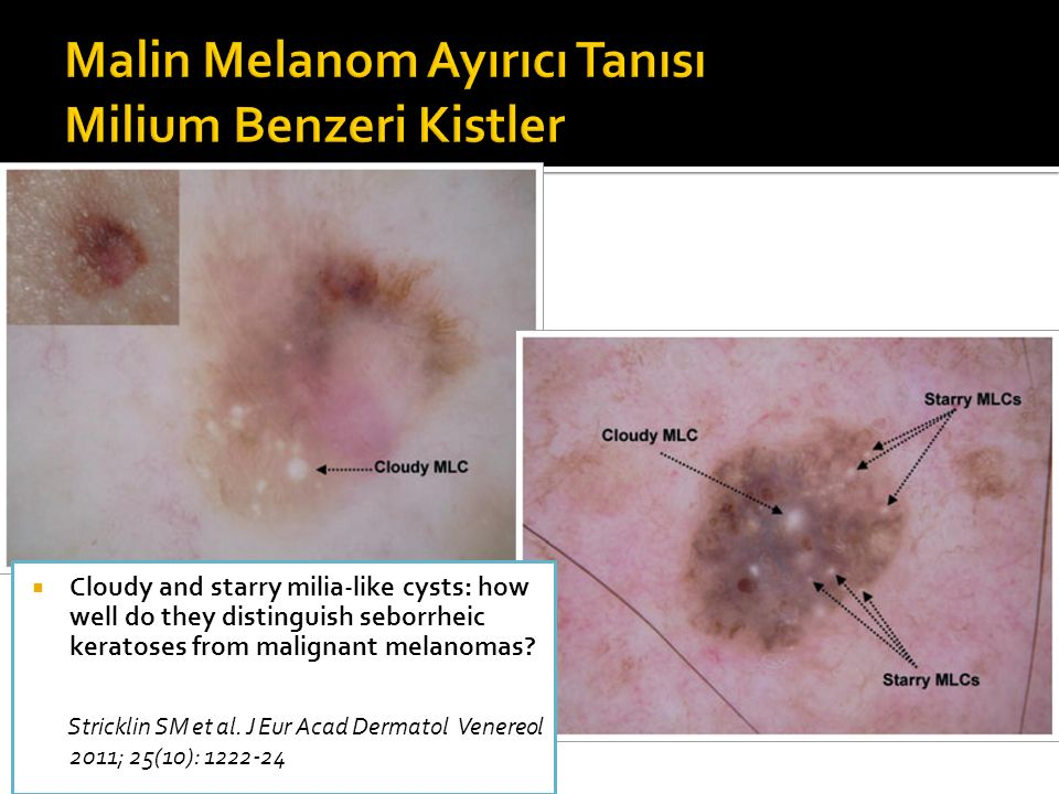  Cloudy and starry milia-like cysts: how well do they distinguish seborrheic keratoses from malignant melanomas.