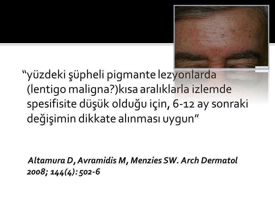 yüzdeki şüpheli pigmante lezyonlarda (lentigo maligna )kısa aralıklarla izlemde spesifisite düşük olduğu için, 6-12 ay sonraki değişimin dikkate alınması uygun Altamura D, Avramidis M, Menzies SW.