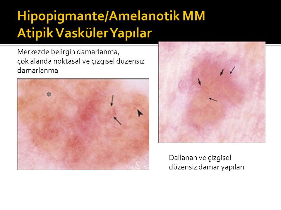 Merkezde belirgin damarlanma, çok alanda noktasal ve çizgisel düzensiz damarlanma Dallanan ve çizgisel düzensiz damar yapıları