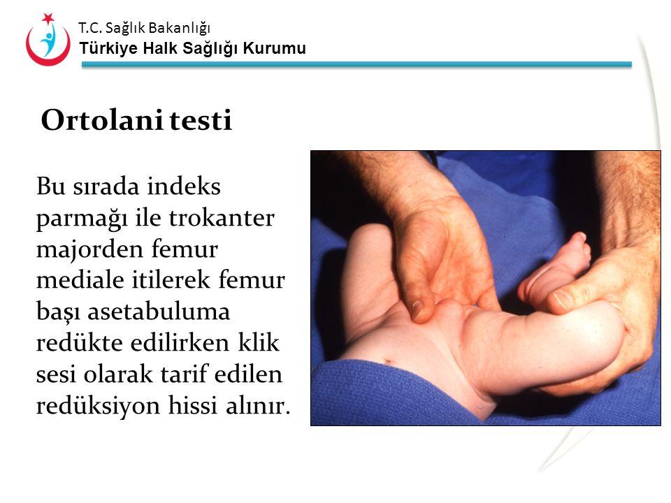 T.C. Sağlık Bakanlığı Türkiye Halk Sağlığı Kurumu Ortolani testi Her iki alt ekstremite avuç içi ile tutulur. Başparmak uyluk medialine konarken indek