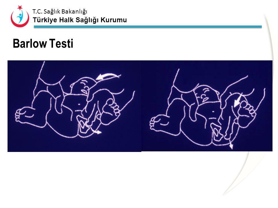 T.C. Sağlık Bakanlığı Türkiye Halk Sağlığı Kurumu Barlow Testi Daha sonra uyluk adduksiyona getirilerek başparmak medialden uyluğa laterale doğru bast