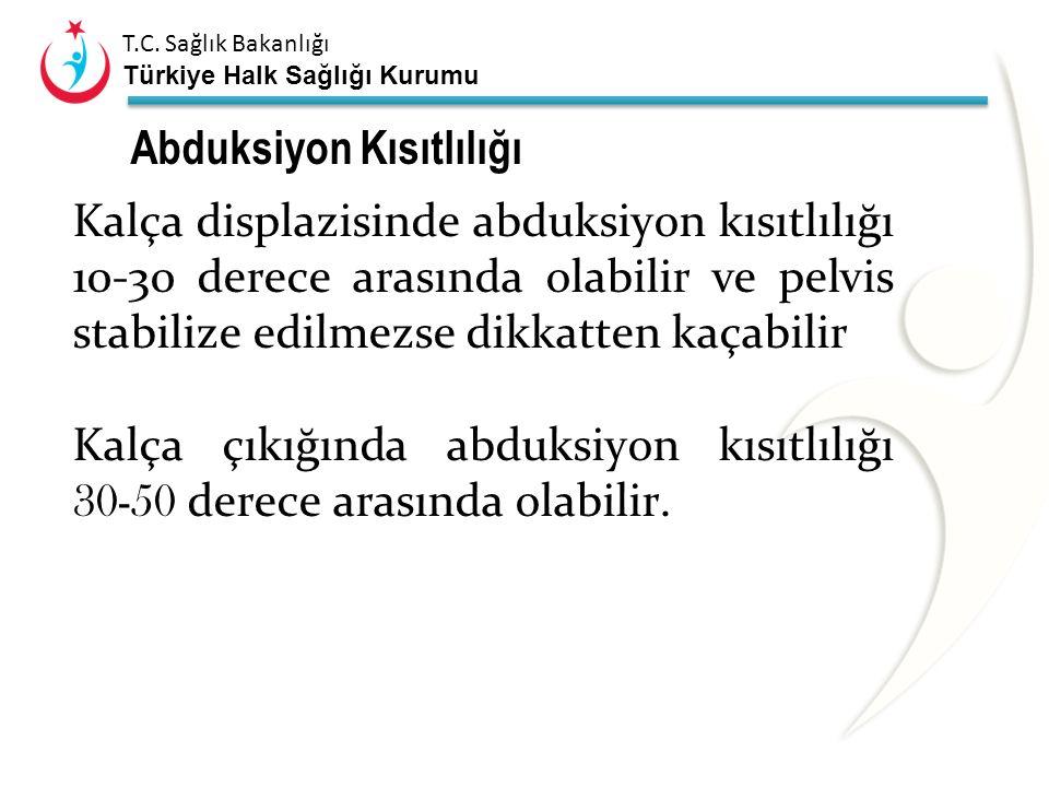 T.C. Sağlık Bakanlığı Türkiye Halk Sağlığı Kurumu Abduksiyon kısıtlılığı Normal bebeklerde %2-4,5 arasında Makat gelişte abduksiyon kısıtlılığı insida