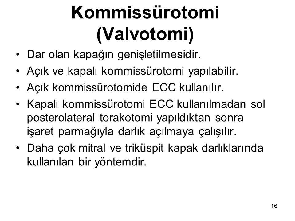 16 Kommissürotomi (Valvotomi) Dar olan kapağın genişletilmesidir.