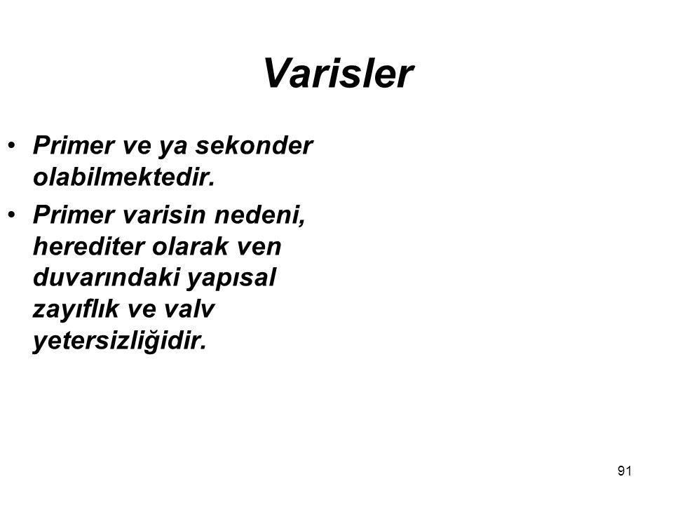 91 Varisler Primer ve ya sekonder olabilmektedir.
