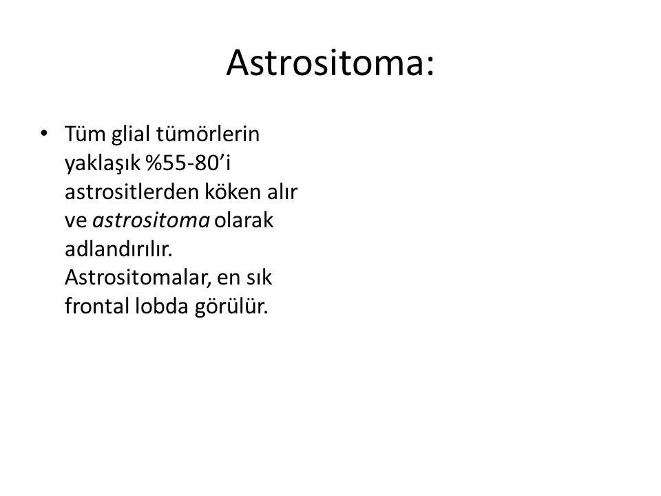 Astrositoma: Tüm glial tümörlerin yaklaşık %55-80'i astrositlerden köken alır ve astrositoma olarak adlandırılır. Astrositomalar, en sık frontal lobda