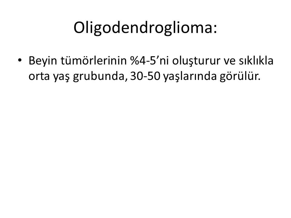 Oligodendroglioma: Beyin tümörlerinin %4-5'ni oluşturur ve sıklıkla orta yaş grubunda, 30-50 yaşlarında görülür.