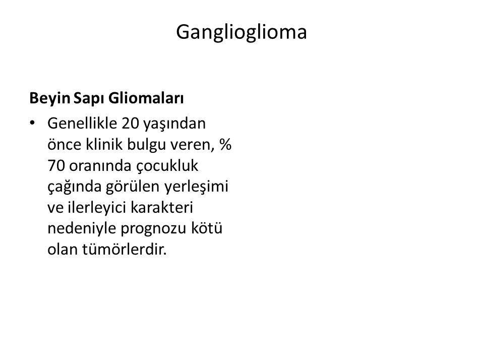 Ganglioglioma Beyin Sapı Gliomaları Genellikle 20 yaşından önce klinik bulgu veren, % 70 oranında çocukluk çağında görülen yerleşimi ve ilerleyici kar