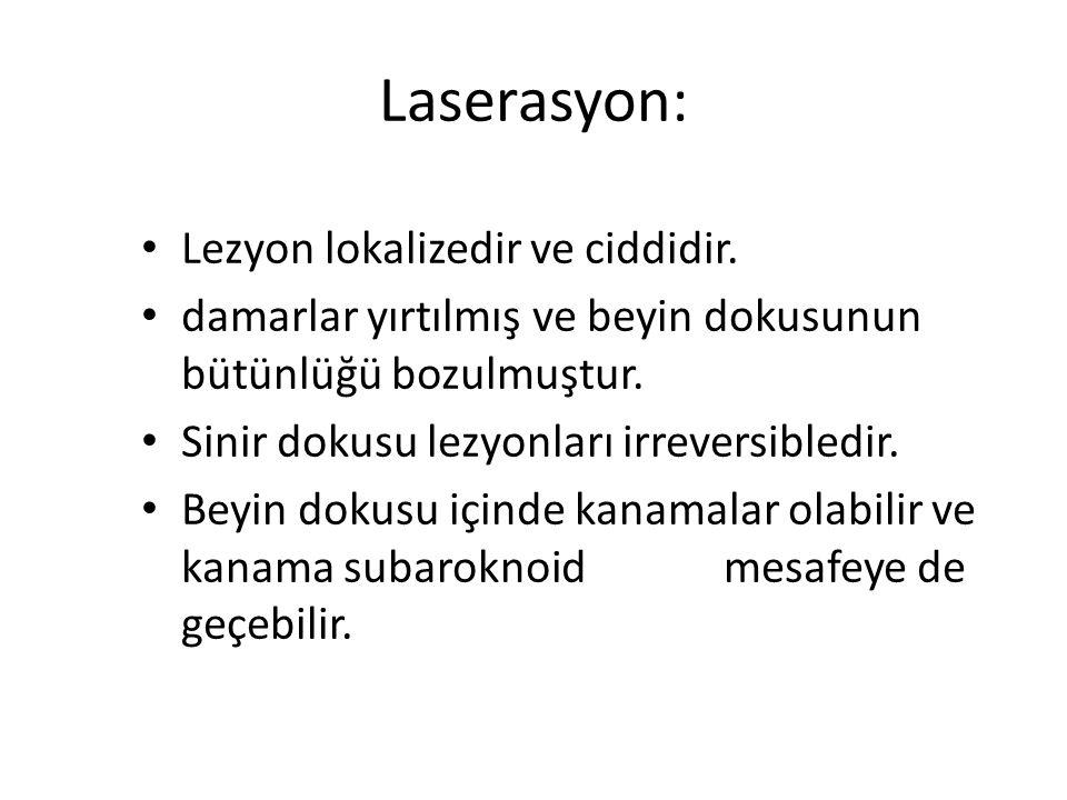Laserasyon: Lezyon lokalizedir ve ciddidir. damarlar yırtılmış ve beyin dokusunun bütünlüğü bozulmuştur. Sinir dokusu lezyonları irreversibledir. Beyi