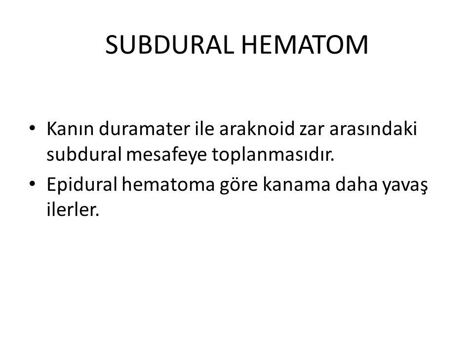 SUBDURAL HEMATOM Kanın duramater ile araknoid zar arasındaki subdural mesafeye toplanmasıdır. Epidural hematoma göre kanama daha yavaş ilerler.